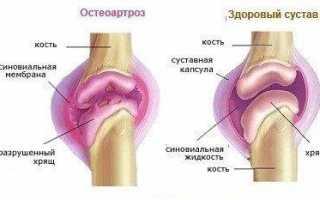 Артроз плечевого сустава. причины, симптомы, диагностика и лечение артроза
