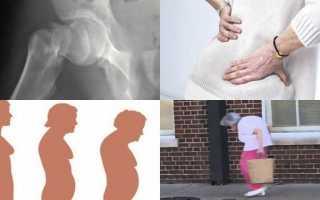 Остеохондроз остеопороз симптомы лечение