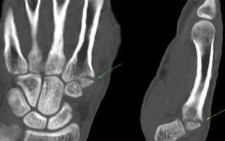 Мрт кисти рук и лучезапястного сустава: что показывает, техника проведения