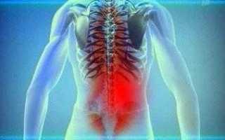 Что делать, если врач диагностировал ревматизм суставов: симптомы и лечение