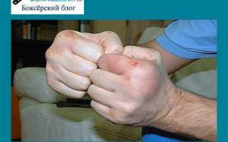 Правильные действия при выбитом пальце руки