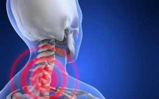 Техника массажа с медом от остеохондроза и ее эффективность