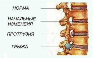 Грыжа позвоночника: симптомы, диагностика, лечение и реабилитация