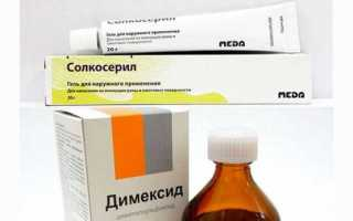 Компрессы с димексидом для лечения болезней суставов