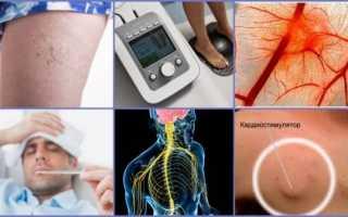 Аппараты для лечения артроза в домашних условиях
