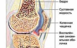Боли в коленях: причины и лечение