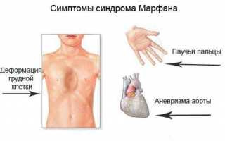Синдром марфана: фото, симптомы и лечение