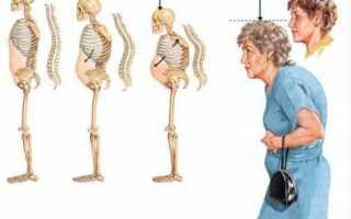 Диффузный остеопороз позвоночника и его лечение