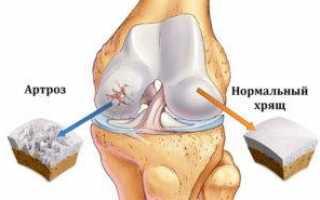 Приседания при артрозе колен