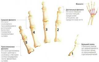 Артроз малых фаланговых суставов