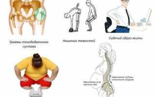 Симптомы сакроилеита: методы диагностики, лечения и прогноз патологии