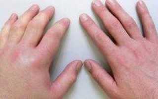Причины узелков гебердена на пальцах рук