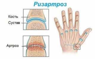 Увеличение суставов на пальцах рук