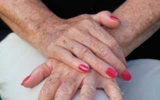 Способы избавления от возрастной пигментации на руках