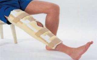 Наложение лангеты на коленный сустав