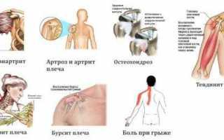 Сильно болит плечевой сустав ночью