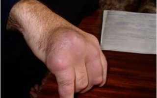 Чем лечить подагру на большом пальце ноги: фото, симптомы и методы лечения