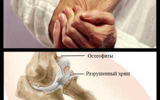 Боль в бицепсе левой руки