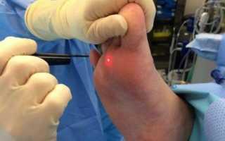 О чем расскажут ваши ноги. второй палец вашей ноги длиннее, чем все остальные? узнайте, что это значит