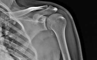 Мрт плечевого сустава: особенности проведения