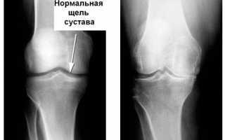 Что лучше узи, рентген или мрт коленного сустава?