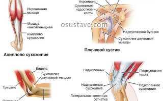 Tендинит коленного сустава: диагностика, симптомы и лечение