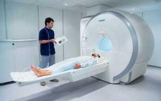 Ангиография сосудов головного мозга и шеи