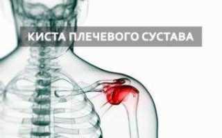 Киста плечевого сустава: причины, симптомы и лечение