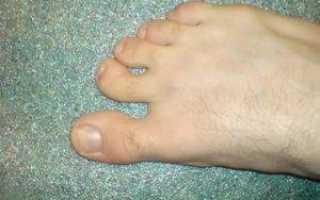 Загибаются ногти на ногах у ребенка