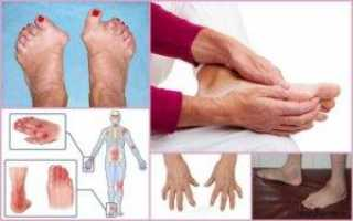 Как добиться наступления ремиссии при артрите и продлить ее