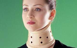 Воротник шанца для шеи при остеохондрозе
