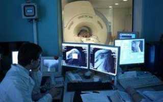 Компьютерная томография шейного отдела