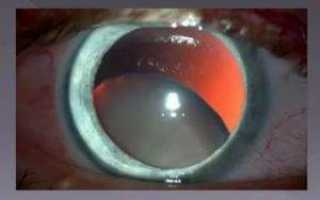 Вывих хрусталика глаза у людей: что это?