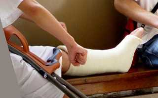 Что делать при переломе лодыжки