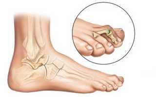 Как убрать косточки (шишки) на ногах без операции