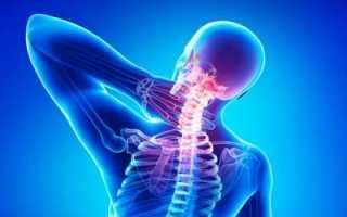 Как пить аспирин при остеохондрозе?