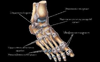 Перелом ногтевой фаланги пальца ноги сколько срастается