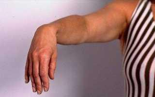 Синдром запястного канала (туннельный синдром). причины, симптомы, признаки, диагностика и лечение патологии