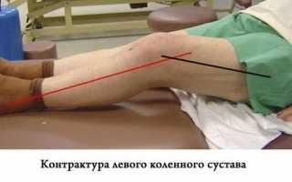 Сгибательная контрактура коленного сустава