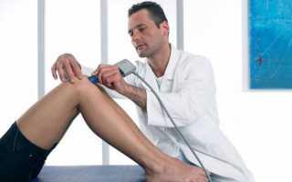 Как устроен коленный сустав, и что может вывести его из строя?