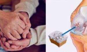 Лечение суставов в домашних условиях народными средствами