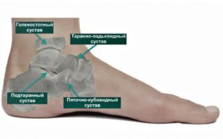Суставы нижних конечностей и их заболевания