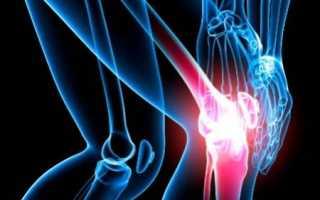 Эпикондилит коленного сустава: причины развития, симптомы, лечение