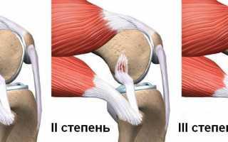 Частичный разрыв связок коленного сустава