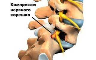 Почему хрустит шея? причины, возможные заболевания и их лечение