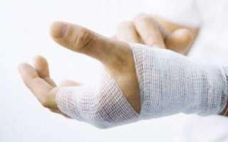 Сколько заживает перелом пальца на руке