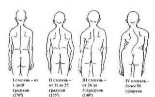 Лечение сколиоза первой степени