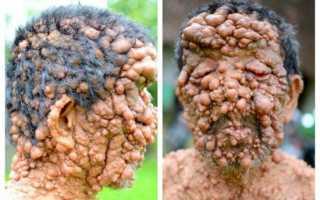 Безболезненное удаление фибромы под кожей на ноге