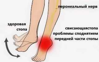 Анатомия мышц стопы