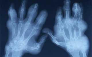 Рентген кисти руки: подготовка к проведению, расшифровка и нормальные показатели